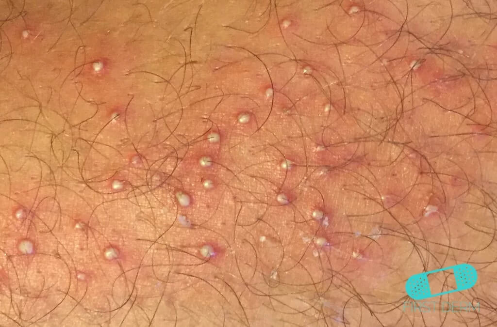 Folliculitis (Barber's Itch) (02) right leg [ICD-10 L73.9]