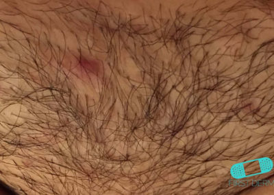 Folliculitis (Barber's Itch) (09) chest [ICD-10 L73.9]