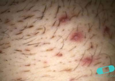 Folliculitis (Barber's Itch) (17) pubic [ICD-10 L73.9]