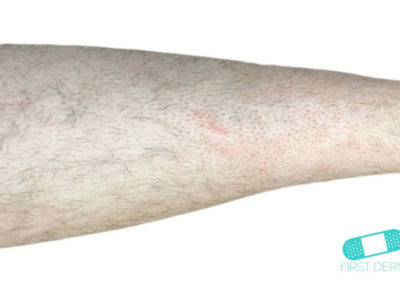 Folliculitis (Barber's Itch) (18) arm [ICD-10 L73.9]