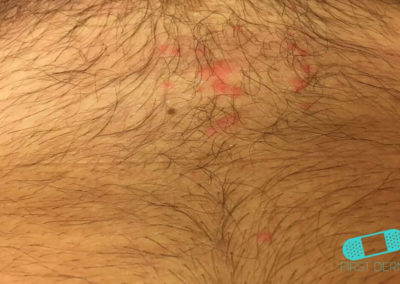 Folliculitis (Barber's Itch) (22) male chest [ICD-10 L73.9]