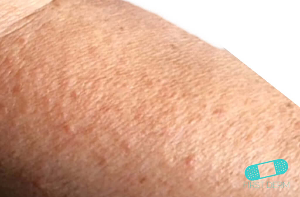 inflammerad hårsäck pung