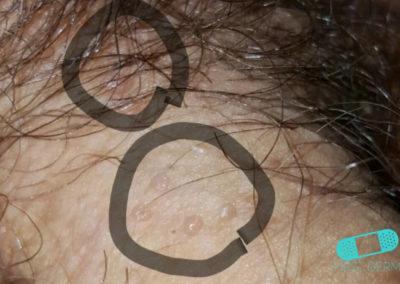 Fordycefläckar (synliga talgkörtlar) (05) penis [ICD-10 Q38.6]