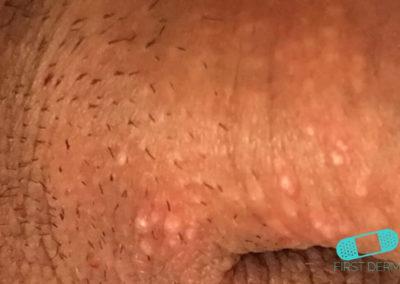 Fordycefläckar (synliga talgkörtlar) (09) penis [ICD-10 Q38.6]