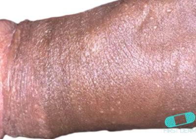 Fordycefläckar (synliga talgkörtlar) (15) penis [ICD-10 Q38.6]
