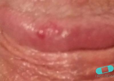 Fordycefläckar (synliga talgkörtlar) (19) penis [ICD-10 Q38.6]