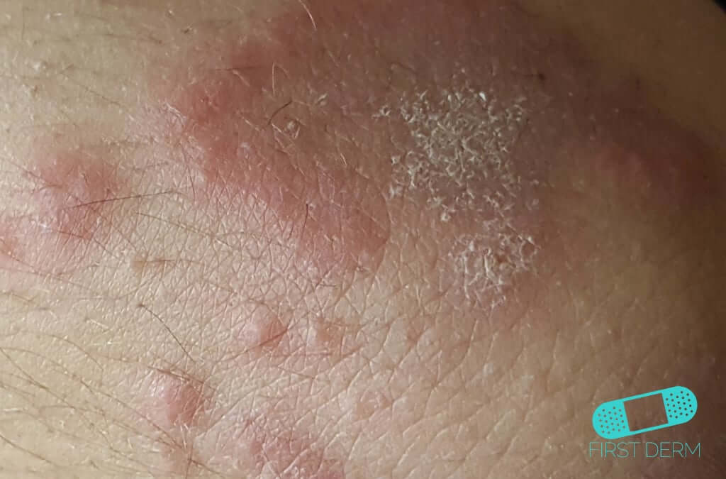 Fungal infections (02) skin [ICD-B35.9]