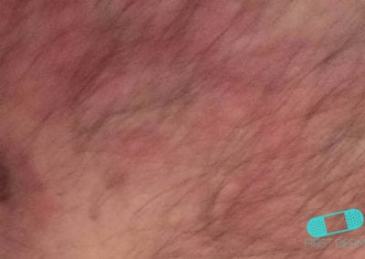 Fungal infections (05) groin [ICD-B35.9]