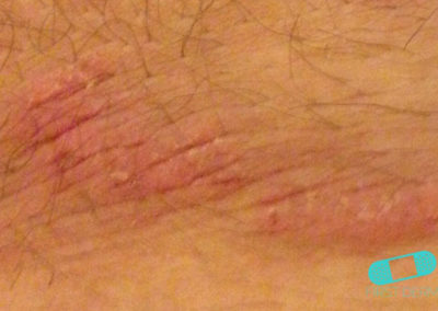 Fungal infections (11) skin [ICD-B35.9]