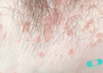 Fungal infections (14) skin [ICD-B35.9]