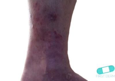 Fungal infections (15) leg [ICD-B35.9]