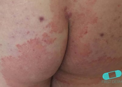 Fungal infections (18) buttocks [ICD-B35.9]