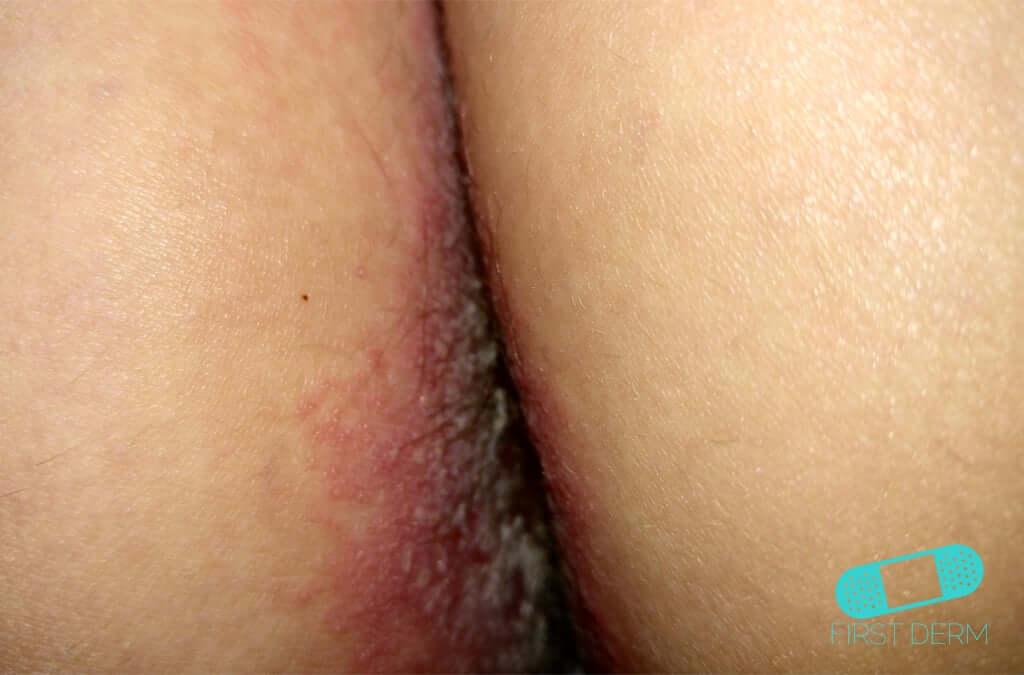Genital Herpes (01) anus [ICD-10 A60.0]