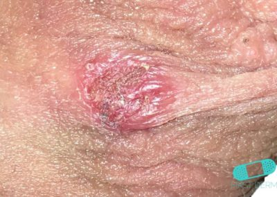 Genital Herpes (02) groin [ICD-10 A60.0]