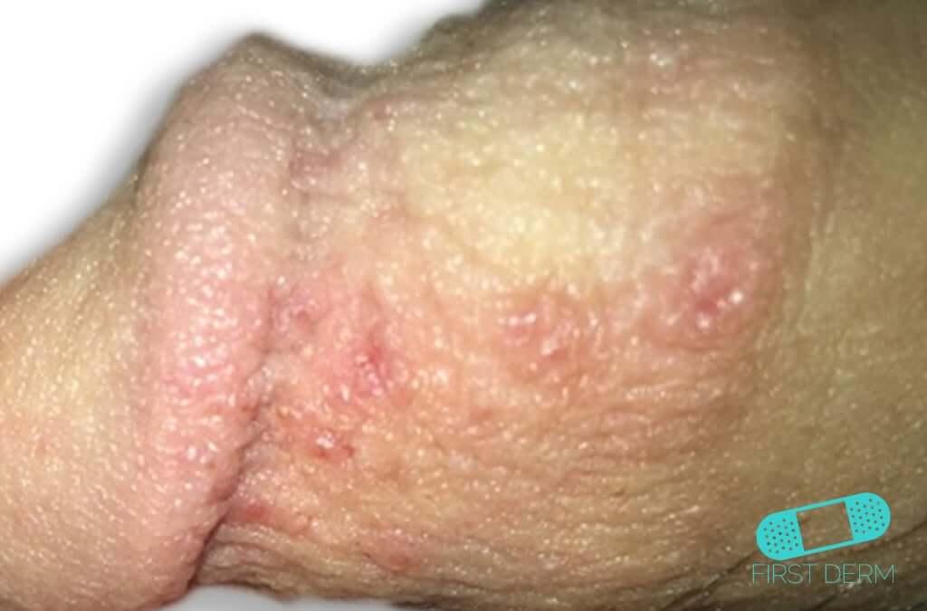 Genital Herpes (03) penis [ICD-10 A60.0]