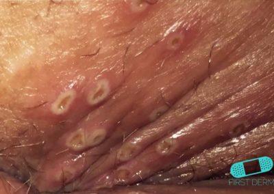 Genital Herpes (13) sår vagina [ICD-10 A60.0]