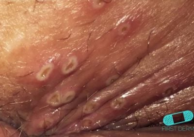 Genital Herpes (13) blisters [ICD-10 A60.0]