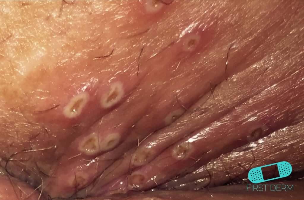 Genital Herpes (13) skin [ICD-10 A60.0]