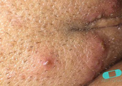 Genital Herpes (17) skin [ICD-10 A60.0]