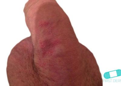 Genital Psoriasis (03) penis [ICD-10 L40.9]