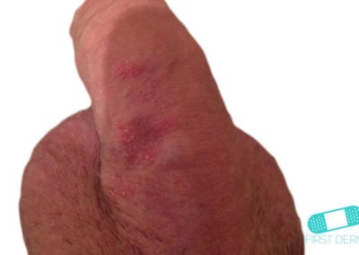 Genital Psoriasis (03) penis shaft [ICD-10 L40.9]