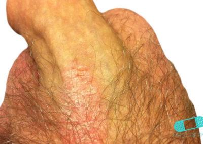 Genital Psoriasis (05) penis shaft [ICD-10 L40.9]