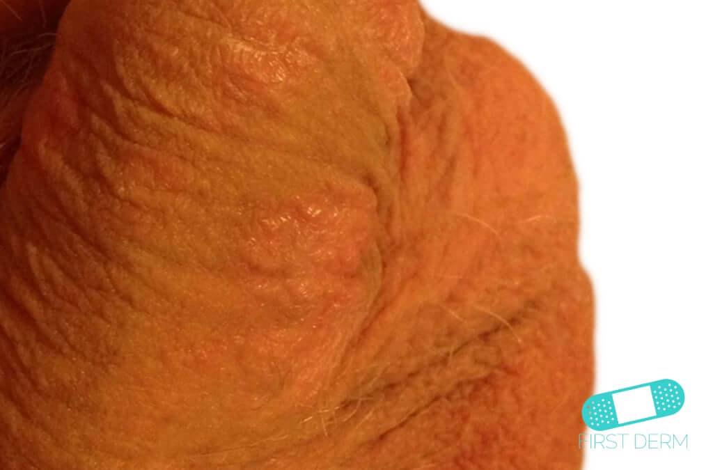 torr hud på pungen