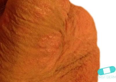 Genital Psoriasis (06) penis [ICD-10 L40.9]