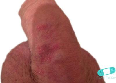 Genital Psoriasis (07) penis [ICD-10 L40.9]