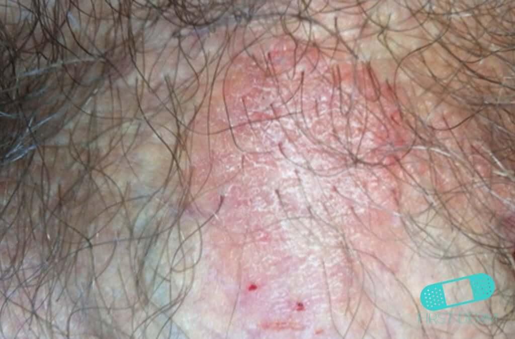 what does genital psoriasis look like