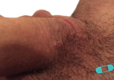 Genital Warts (02) HPV (human papillomavirus) penis [ICD-10 A63.0]