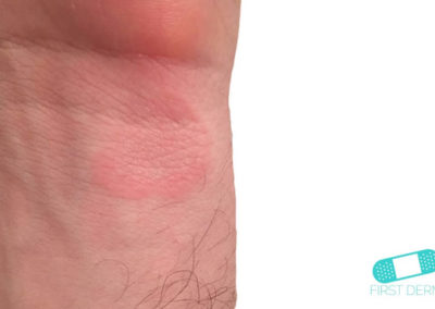 Granuloma Annulare (02) wrist [ICD-10 L92.0]