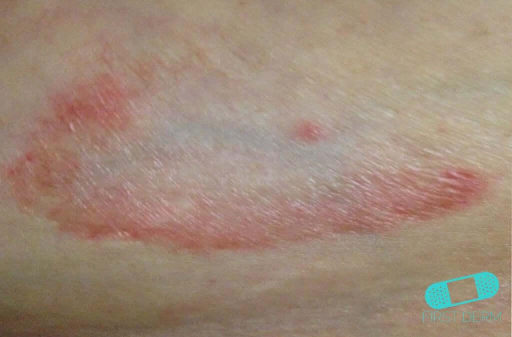 Granuloma Annulare (05) skin [ICD-10 L92.0]