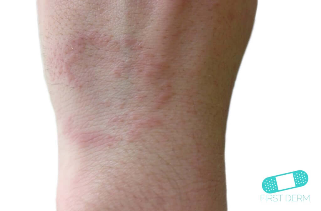 Granuloma Annulare (14) wrist [ICD-10 L92.0]