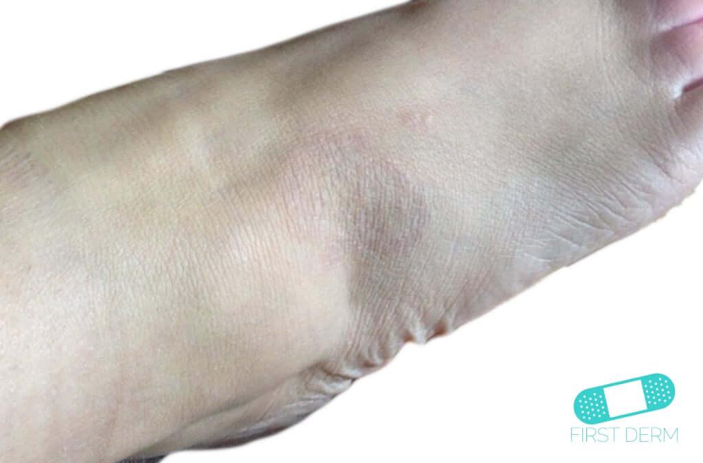 Granuloma Annulare (16) foot [ICD-10 L92.0]