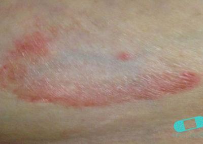 Granuloma Anular (05) piel [ICD-10 L92.0]