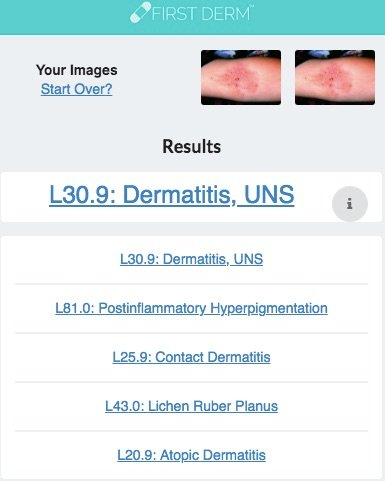 Health Chatbot Atopic Dermatitis Skin Image Search NHS
