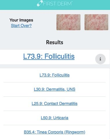 Health Chatbot Contact Dermatitis Skin Image Search NHS