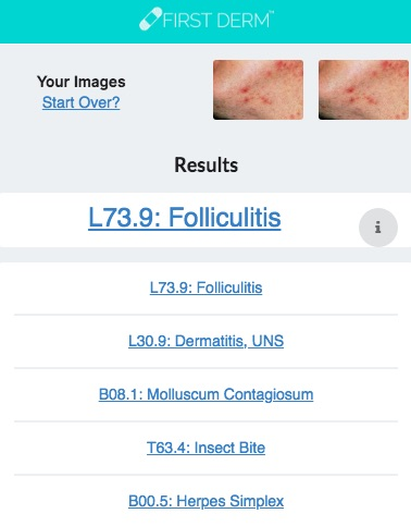 Health Chatbot Folliculitis Skin Image Search NHS