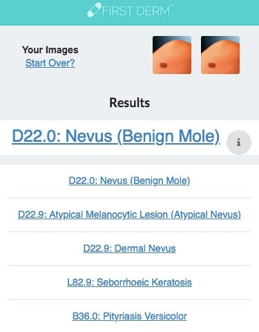 Health Chatbot Mole Nevus 2 Skin Image Search NHS