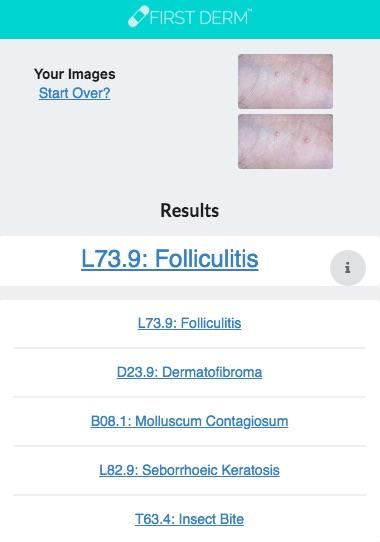Health Chatbot Moluscum Contagiosum genital Nevus Skin Image Search NHS