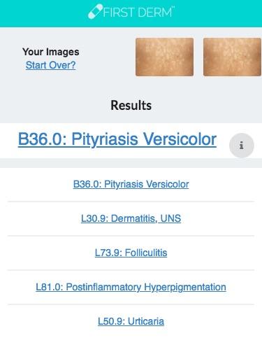 Health Chatbot Pityriasis versicolor genital Nevus Skin Image Search NHS