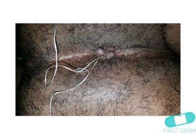Hemorrhoids (05) anus [ICD-10 K64.9]