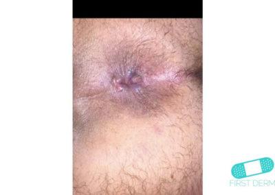 Hemorrhoids (08) anus [ICD-10 K64.9]