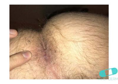 Hemorrojder (02) anus [ICD-10 K64.9]