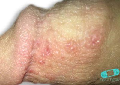Herpes Genital (03) pene [ICD-10 A60.0]
