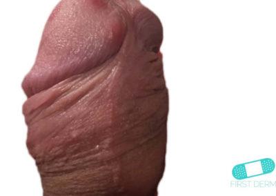 Herpes Genital (06) pene [ICD-10 A60.0]