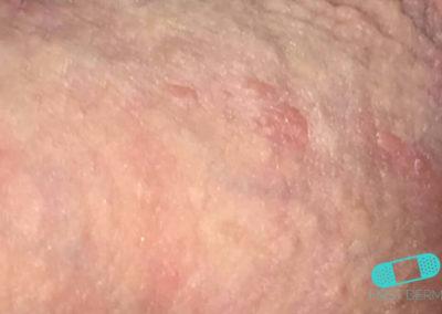 Herpes Genital (14) piel [ICD-10 A60.0]