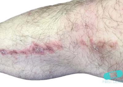 Herpes Zoster (Culebrilla) (18) cuello [ICD-10 B02]