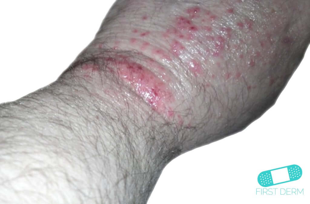 Herpes Zoster (Shingles) (02) arm [ICD-10 B02]
